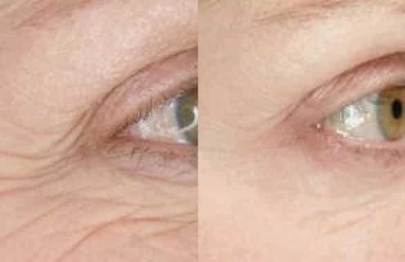 🥇 9 Migliori Creme Contorno Occhi (Mia Esperienza Dal Centro Estetico)